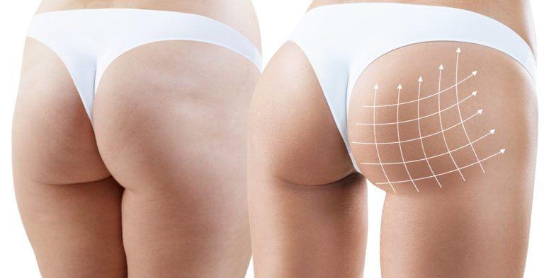 Butt-Lifting-Surgery.